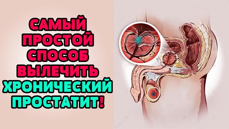 Лечение от простатита не помогает